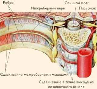 Intercostal neuralgia