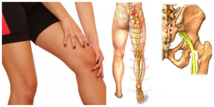pain in the back and leg treatment