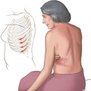 sore ribs from causing back
