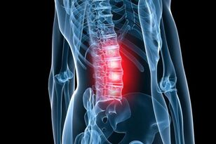 osteochondrosis of the lumbar spine